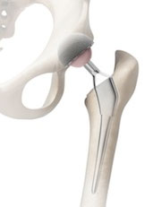 Stryker® Hip Implant Recall