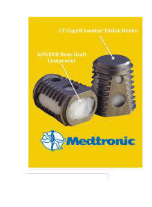 Lumbar-Tapered-Fusion-Device -2